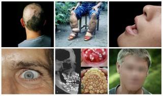 15 najdziwniejszych chorób w historii medycyny
